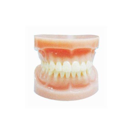 model gigi mulut penuh standar